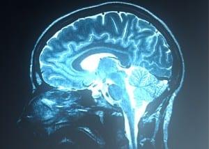 MRI van hersenen