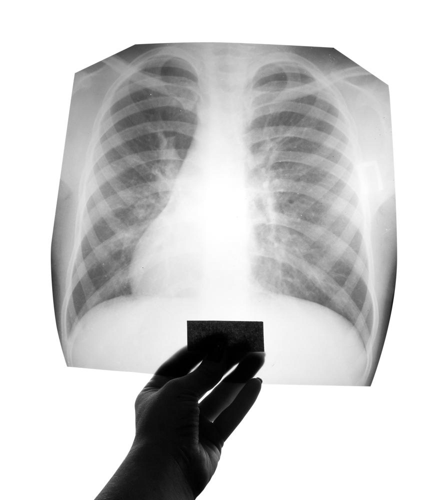 gebroken rib, gebroken ribben