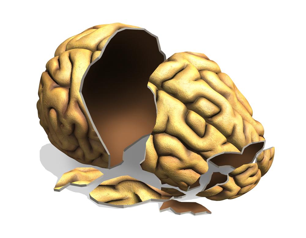 hersenletsel
