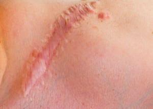 littekens